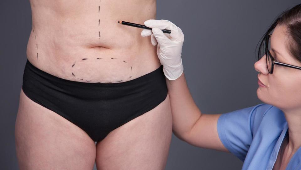 Oblikovanje trebuha s kirurškim posegom