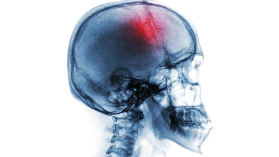 Zdravljenje z alteplazo